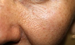 Skin on cheek with enlarged pores. macro Stock Photography