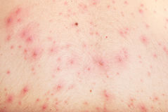Skin with chickenpox. Detail of male skin with chicken pox background Royalty Free Stock Photography