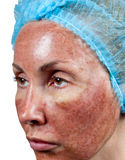 Skin condition after chemical peeling TCA. The beginning of tearing away of the top burned layer,Close up Stock Photo