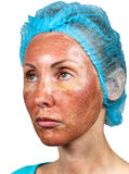 Skin condition after chemical peeling TCA.quarters Royalty Free Stock Photo