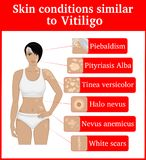 Skin conditions having an external resemblance to Vitiligo Stock Photo