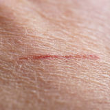 Skin cut macro Royalty Free Stock Images