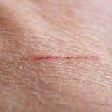 Skin cut macro Royalty Free Stock Images