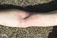 Skin dermatitis. Adult arm skin detail dermatitis in grass Royalty Free Stock Photo