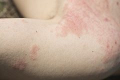 Skin dermatitis. Adult skin dermatitis, detail arm skin Stock Images