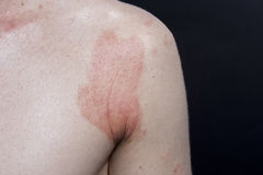 Skin dermatitis. Adult skin with dermatitis utopica Stock Image