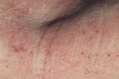 Skin dermatitis. Adult skin with dermatitis utopica Royalty Free Stock Image