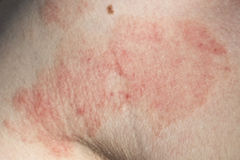 Skin dermatitis. Dermatitis skin detail with an adult Royalty Free Stock Photo