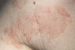 Skin dermatitis. Detail of adult skin dermatitis Stock Photography