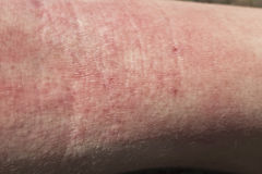 Skin dermatitis. Detail Adult skin dermatitis, arm detail Stock Images