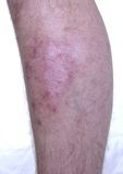 Skin Disease. On the leg. Pigment missing Stock Photo