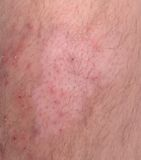 Skin Disease. Closeup of skin infection. Mixture of psoriasis and vitiligo Royalty Free Stock Photo