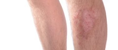 Skin Disease. Panoramic image of skin infection on a leg. Isolated on white Stock Image