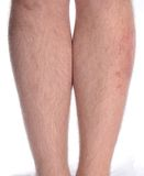Skin Disease on the Leg. Patient suffering from psoriasis and vitiligo on the left leg Royalty Free Stock Image