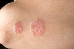 Skin disease psoriasis. Close up Royalty Free Stock Photo