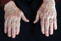 Skin disease Stock Photos