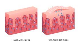 Skin disease  / psoriasis Stock Photography