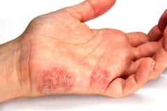 Skin Disease. Tinea manuum ( skin disease ) close up royalty free stock photos