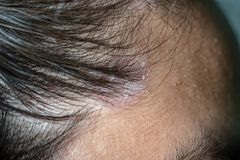 Skin diseases, on the scalp. Close up photo of nevus sebaceus on scalp stock images