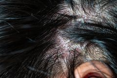 Skin diseases, on the scalp. Woman with dandruff in her dark hair stock image