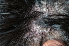 Skin diseases, on the scalp. Woman with dandruff in her dark hair royalty free stock photos
