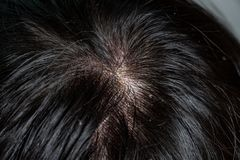 Skin diseases, on the scalp. Woman with dandruff in her dark hair stock photo