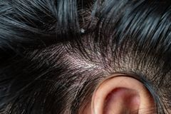 Skin diseases, on the scalp. Woman with dandruff in her dark hair royalty free stock image