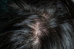 Skin diseases, on the scalp stock images