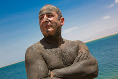 Skin diseases treatment with Dead Sea mud Royalty Free Stock Image