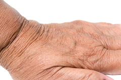 Skin hand of old woman Stock Images