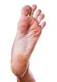Skin on heel Stock Photography