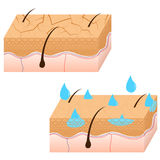 Skin hydration sectional view. Royalty Free Stock Photos