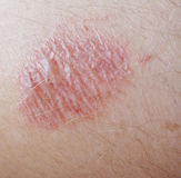 Skin. Image of a burn on skin royalty free stock photography