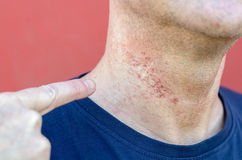 Skin irritation after cosmetic surgery. Close-up on mans neck Stock Photos