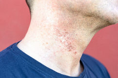 Skin irritation after cosmetic surgery Royalty Free Stock Photography
