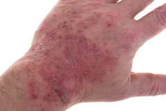 Skin irritation from latex. A severe reaction to latex on the top of a male hand stock image