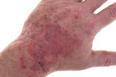 Skin irritation from latex Stock Image
