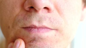Skin irritation after shaving. Man rubs his hand pimples on his chin closeup. Skin irritation after shaving. Man rubs his hand pimples on his chin closeup stock video
