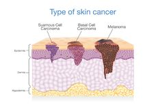 Skin layer have 3 Type of Cancer in one. Stock Photography