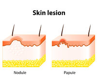 Skin lesion. Papule and Nodule. Skin lesion. Papule is a solid elevation of skin and  accumulation of material in the dermis with no visible fluid. A nodule most Royalty Free Stock Photo