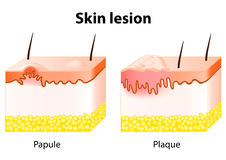 Skin lesion. Papule and Plaque. Skin lesion. Papule is a solid elevation of skin and  accumulation of material in the dermis with no visible fluid. Plaque Stock Images