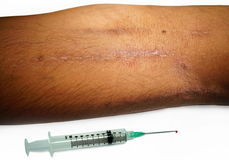 Skin marks of drugs injections. Arm & syringe. Royalty Free Stock Images