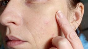 The skin of an older woman with pimples and enlarged pores. Skin care.