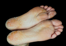 Skin peeling off from both feet side by side. On adult person royalty free stock image