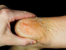 Skin peeling off from heel of an adult person towards black. Skin peeling off from heel of an adult person, examined by podiatrist, towards black stock images