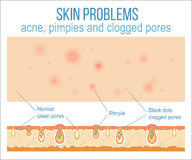 Skin and pores Royalty Free Stock Images