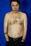 Skin problem. This a picture of a middle age man showing his torso with a skin rush Royalty Free Stock Image