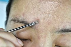 Skin problem with acne diseases, Close up woman face squeezing whitehead pimples with acne removal tool. Stock Photos