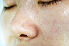 Skin problem with acne diseases, Close up woman wrinkle face with whitehead pimples on nose Royalty Free Stock Photo