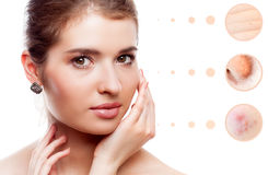 Skin problem of woman face Royalty Free Stock Photo